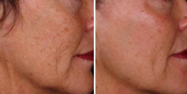 Pearl Fractional laser treatment