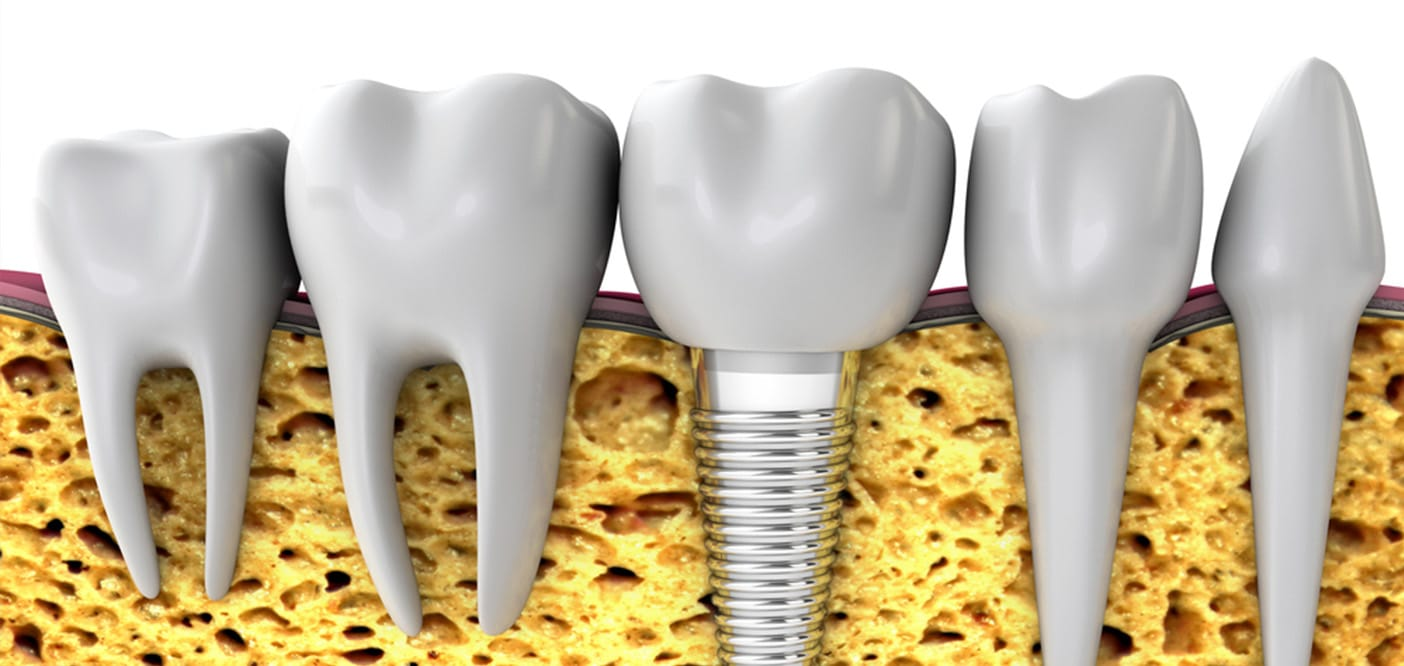 3D Image Of Implant Next To Teeth