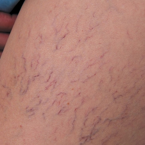 Person with spider veins on skin