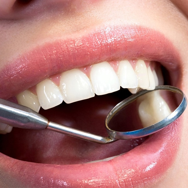 Image of Woman Smiling with Dental Tool