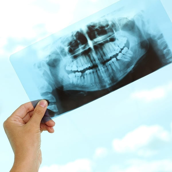 Doctor Holding Xray Up of Teeth